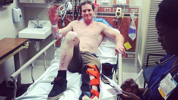 Van Homan slowly returns from compound leg break