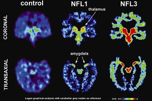 Brain scans done as part of a UCLA study showed tau in the brains of five living former NFL players.